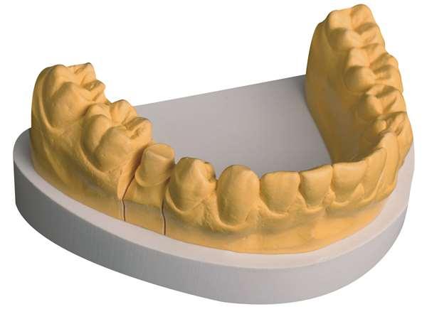 Primus Plus gelb 25 kg (Karton)