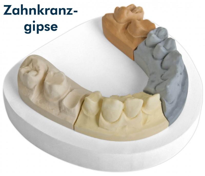 Zu den Zahnkranzgipsen